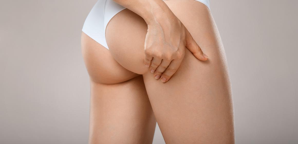 ¿Cuál es el mejor tratamiento para la celulitis y la flacidez?